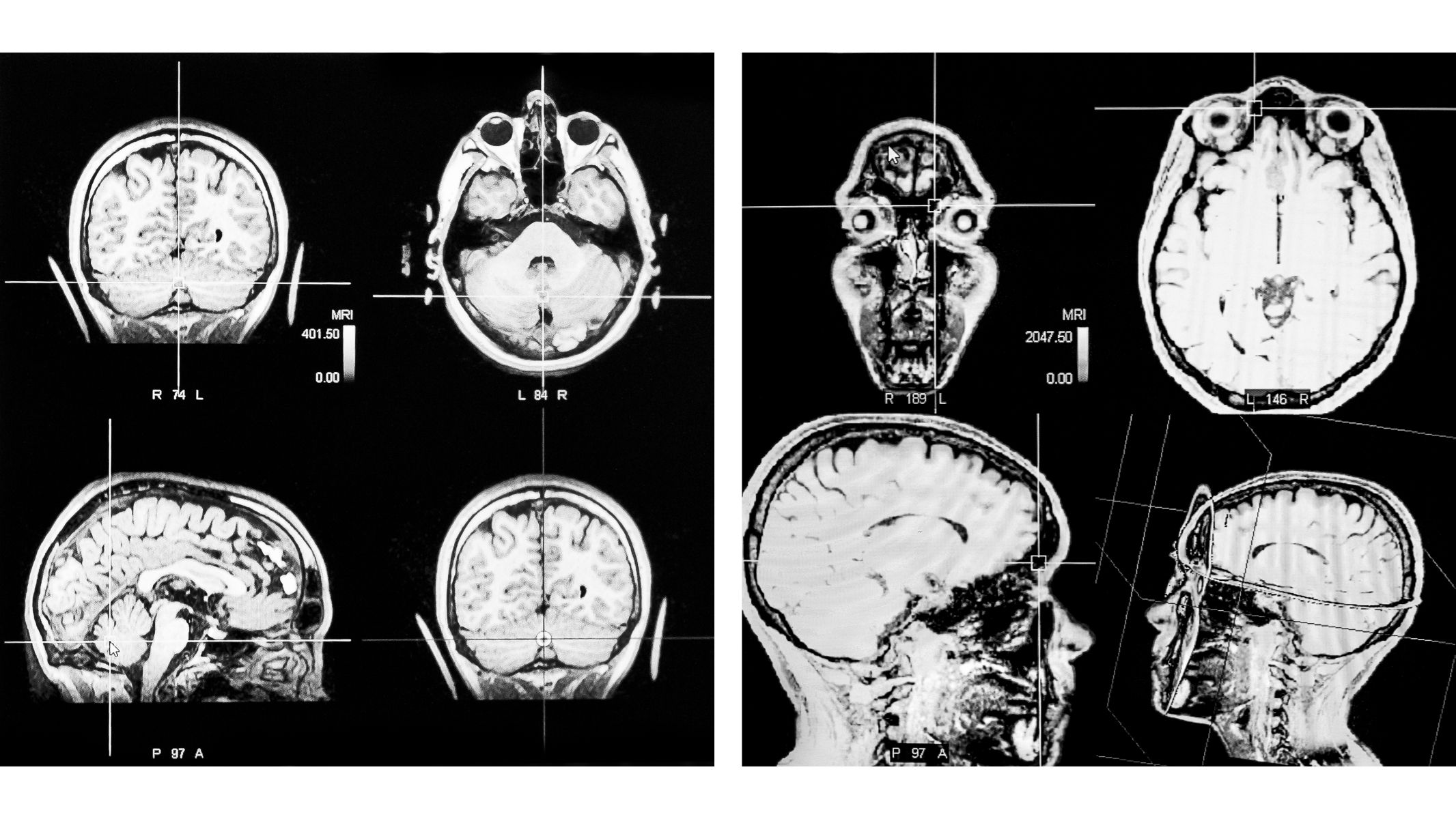 Thresholds of the Mind ~ Brain Scans Diptych